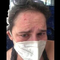 Sarah Nadav, peu après son agression dans un bus de Tel Aviv (Autorisation : Sarah Nadav)