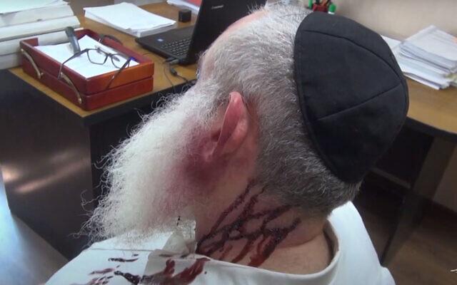 Photos de la mise en scène du meurtre d'Aryeh Leib Tkatch de Krasnodar, en Russie. (Ministère des Affaires intérieures de la Fédération de Russie via JTA)