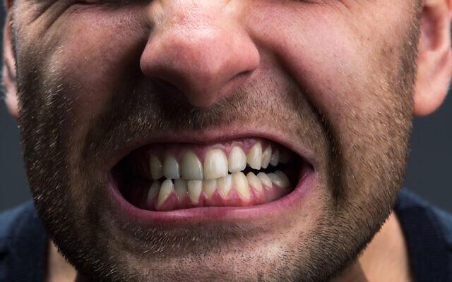 Un homme serre les dents. (Crédit : Nomadsoul1 via iStock by Getty Images)