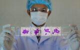 Illustration : une image d'octor de cellules leucémiques. (kukhunthod via iStock Getty Images)