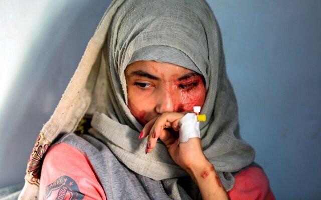 Al-Anoud Hussein Chariane, jeune fille de 19 ans défigurée par une attaque à l'acide par son mari violent, à l'hôpital où elle est soignée à Sanaa, capitale du Yémen, le 28 janvier 2021. (Crédit : Mohammed HUWAIS / AFP)