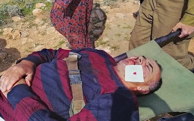 Un membre de la famille Alyan après une attaque présumée d'habitants d'implantation masqués, au sud de Hébron, en Cisjordanie, le 13 mars 2021. (Crédit :  BTselem)