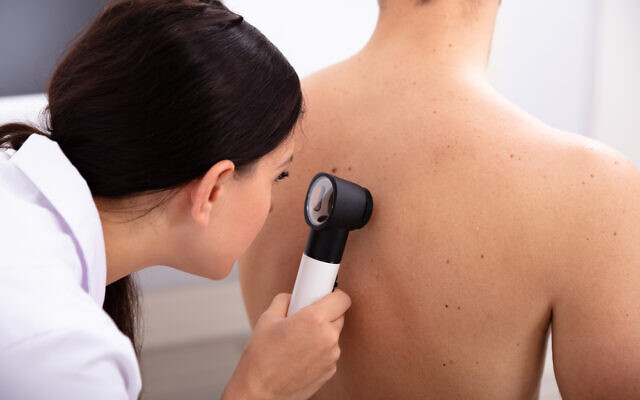 Une dermatologue examinant un patient pour un éventuel cancer de la peau. (AndreyPopov via iStock by Getty Images)