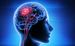 Illustration d'une tumeur cérébrale causée par un glioblastome. (peterschreiber.media via iStock by Getty Images)