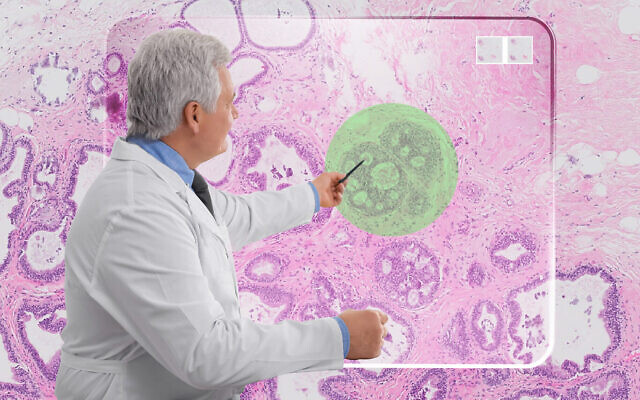 La technologie d'IA développée par Ibex met en évidence (en vert) une cellule cancéreuse lors d'une biopsie. (Autorisation)