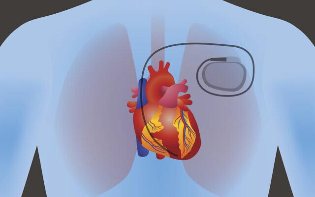 Photo d'illustration : Un pacemaker dans le corps humain. (Crédit : Chombosan via iStock by Getty Images)