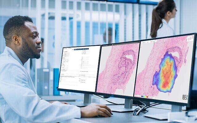 Ibex Medical Analytics est un fabricant israélien de logiciels de diagnostic du cancer basés sur l'IA. (Crédit : autorisation)