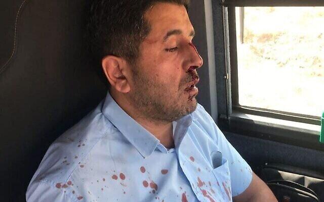 Le chauffeur de bus Muhammad Kak a été agressé près de la ville cisjordanienne de Shvut Rachel, le 13 août 2021. (Autorisation)