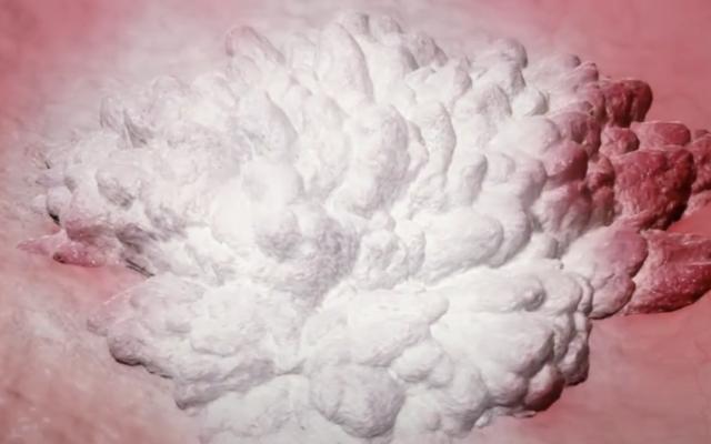 Un nouveau produit qui gèle les cellules cancéreuses, utilisé dans les cancers de la vessie. (Capture d'écran :  Vessi Medical)