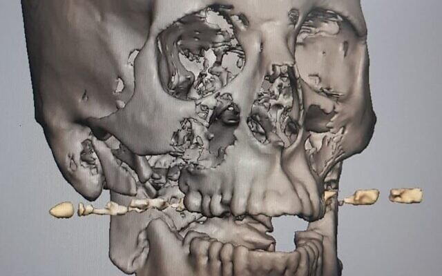"""Imagerie 3D de la mâchoire de """"Dalet"""" après la blessure, avec la balle représentée. (Autorisation : Rambam Healthcare Campus)"""