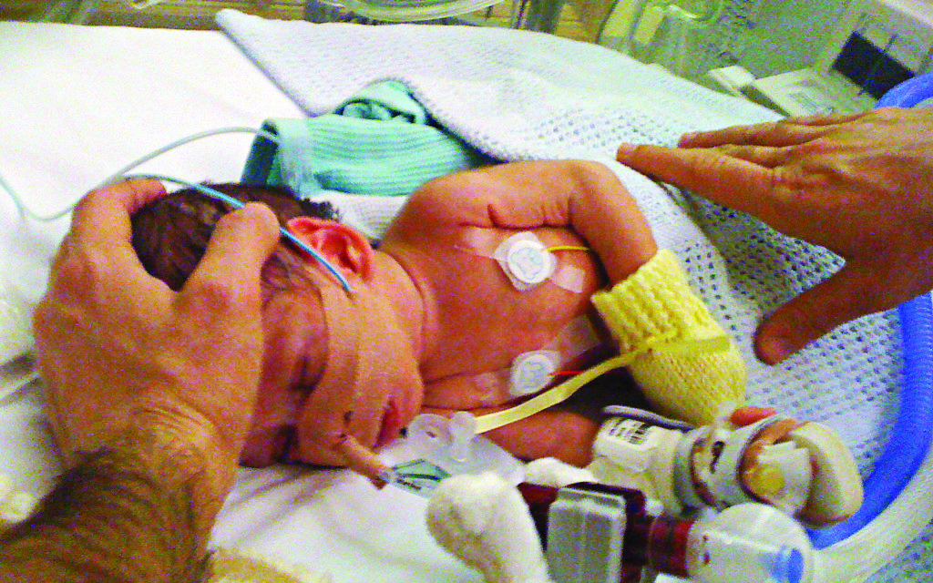 Jacob (above) and his sister Brooke were born six weeks premature