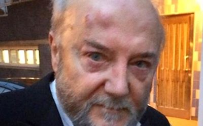 The anti-Israel politician suffered facial injuries following an assault in Golborne Road, Notting Hill, London.