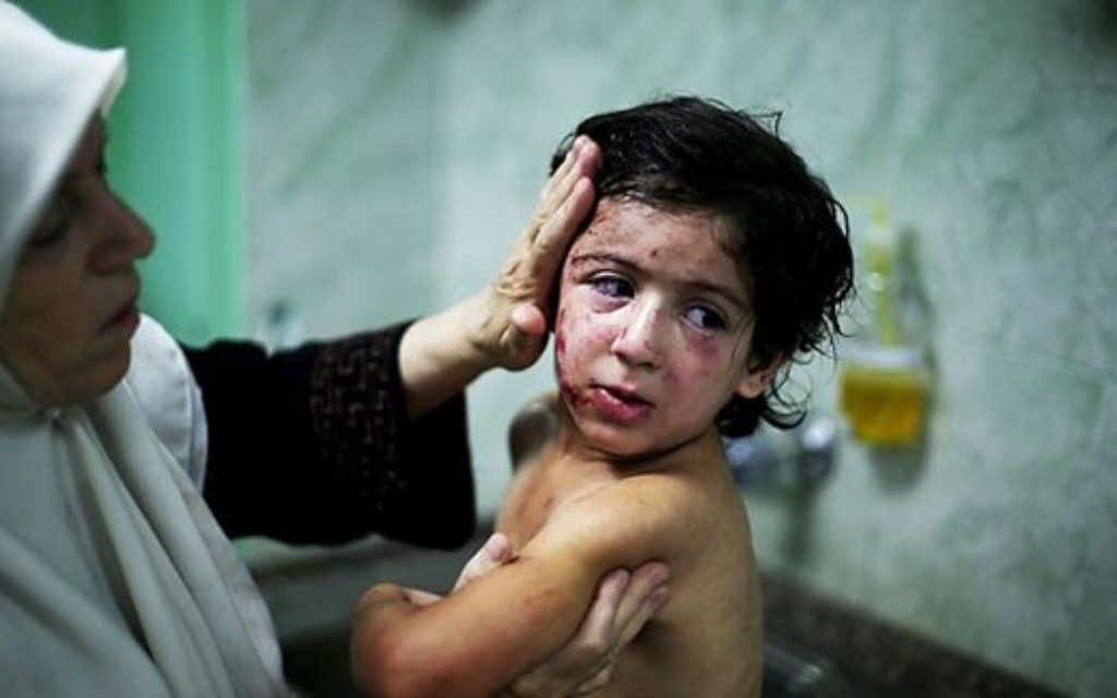 One of the images of wounded Gazan children that features in the DEC's appeal.