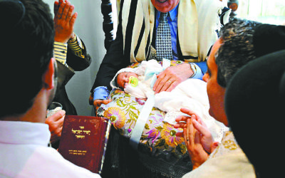 Circumcision is a fundamental belief in Orthodox Judaism