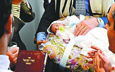 Circumcision is a fundamental belief in Orthodox Judaism