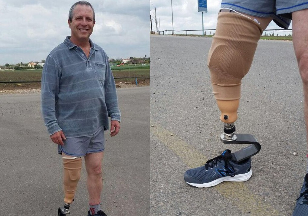 Yair with his new leg
