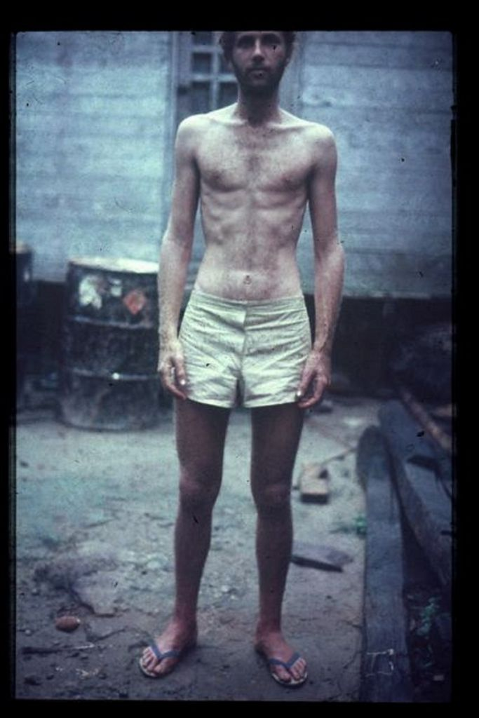 Yossi pictured two days after his rescue, having spent 20 days alone in the Amazon jungle