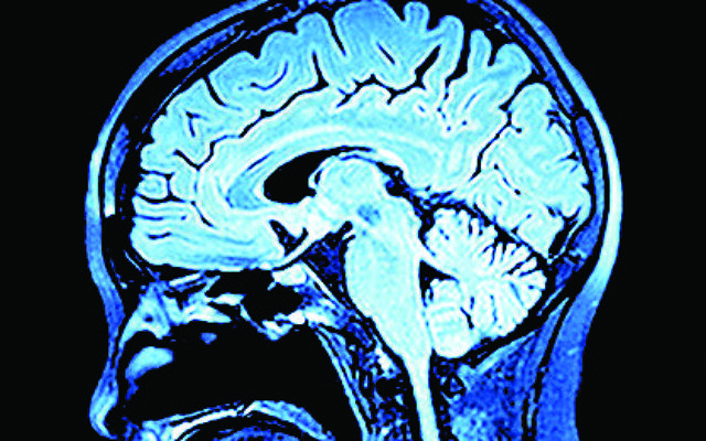 Imaging of the brain on mri scan