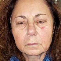 Sharon Klaff after allegedly being assaulted