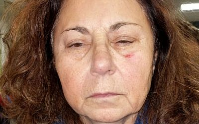 Sharon Klaff after allegedly being assaulted