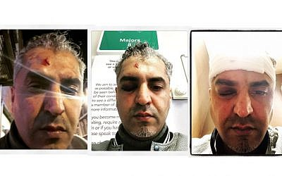 Split screen shows Maajid Nawaz after the racist attack, covered in bandages and blood