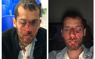 Bloodies Yotam Kashpizky after the attack (Facebook/Barak Kashpizky)