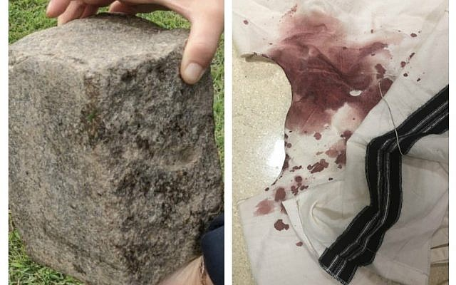 The rock which Abraham Gopin was reportedly attscked with, and his bloodstained tzitzit