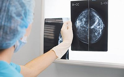 Pictured, a doctor or nurse holding a mammogram in front of x-ray illuminator. (Credit: Queen Mary University of London)