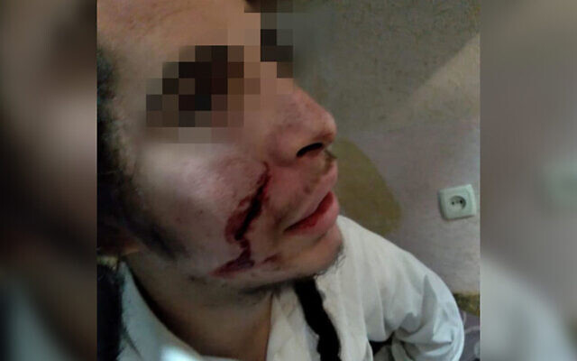 A Jewish teenager was lightly wounded in a suspected knifing attack in Uman, Ukraine on Oct. 1`7, 2020. (Courtesy of the United Jewish Community of Ukraine via JTA)