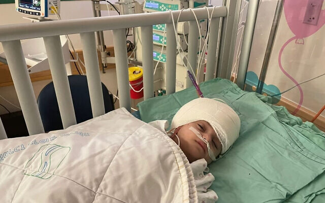 Soroka Medical Center handout photo of one of the conjoined twins after they were separated by British surgeon Dr Noor ul Owase Jeelani in a rare 12-hour surgery at the Soroka Medical Centre in Israel. Issue date: Monday September 6, 2021.