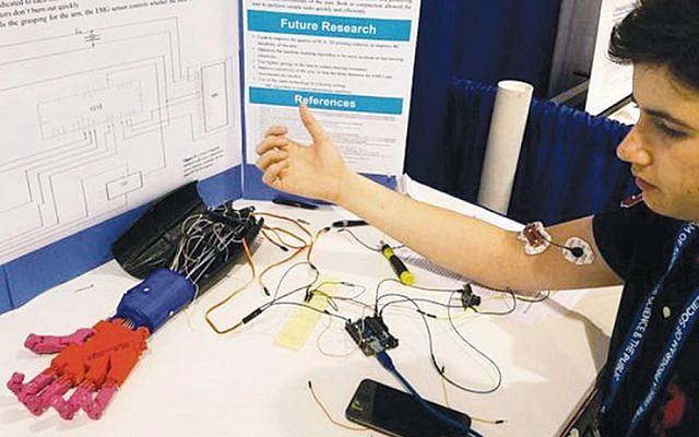 Noam Yakar shows how sensors  on his arm activate a prosthetic hand. (Photos courtesy Noam Yakar)