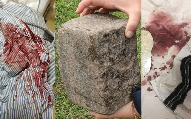 A 64-year-old Hasidic resident of Brooklyn was bloodied with this brick in an attack being investigated by police as a hate crime. (Screenshots from Twitter)
