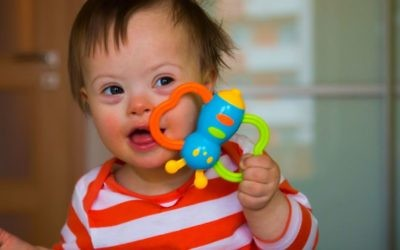 Toddler with Down Syndrome holding toy / Adobe Stock Photo