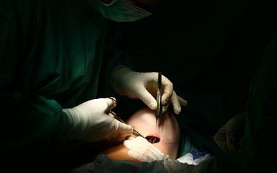 Breast enlargement surgery in Tel Aviv (photo credit: Chen Leopold/Flash 90)