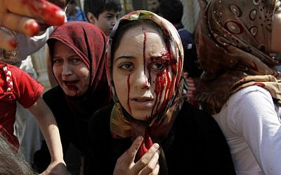 Injured Syrian women arrive at a field hospital after an air strike hit their homes in the town of Azaz on the outskirts of Aleppo, Syria, Wednesday, Aug. 15, 2012. (photo credit: Khalil Hamra/AP)