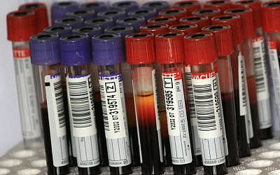 Test tubes filled with blood samples (Illustrative photo credit: Rebecca Zeffert/Flash90)