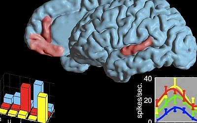 The two language areas where cell reactions during speech were researched. The graphs present a selective code for vowels in an area in the frontal lobe and a non-selective code in an area in the temporal lobe. Each color represents a neuron (Photo credit: Ariel Tankus)