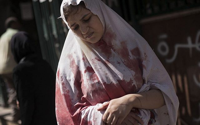 In this Thursday, Sept. 20, 2012 photo, a wounded woman, still in shock, leaves Dar El Shifa hospital in Aleppo, Syria. (AP Photo/ Manu Brabo)
