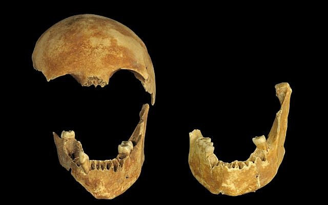 Skeletal remains found at the bottom of an 8,500-year-old well in the Jezreel Valley (photo credit: Clara Amit, courtesy of the Israel Antiquities Authority)