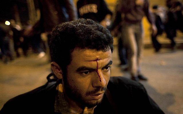 An injured Egyptian anti-government protester waits for medical care during clashes between supporters of president Mohammed Morsi and their rivals in front of the president palace, in Cairo, Egypt, Wednesday, Dec. 5, 2012 (photo credit: AP/Nasser Nasser)