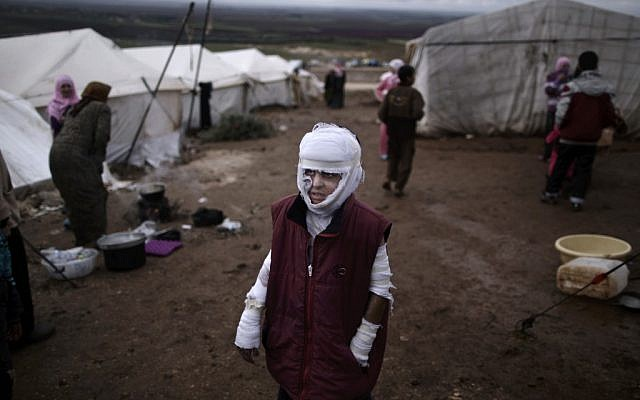Abdullah Ahmed, 10, who suffered burns in a Syrian government airstrike and fled his home with his family, stands outside their tent at a camp for displaced Syrians in the village of Atmeh, Syria, on Tuesday, December 11, 2012. (photo credit: Muhammed Muheisen/AP)
