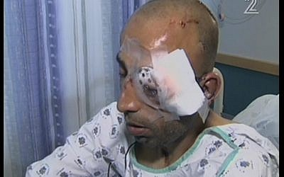 Injured Tel Aviv municipal worker Hassan Ausruf (photo credit: screenshot Channel 2)