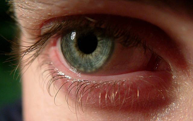 Illustrative photo of an eye (CC BY Samuel Johnson/Flickr)