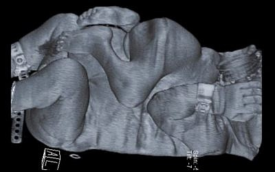 CT scan image of the conjoined twins separated by Rambam Medical Center doctors (photo credit: courtesy Rambam Medical Center)