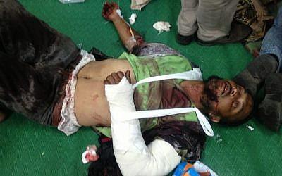 A Muslim Brotherhood activist said to have been injured in clashes Monday, July 8, 2013 (photo credit: Gehad El-Haddad/Muslim Brotherhood, via Twitter)