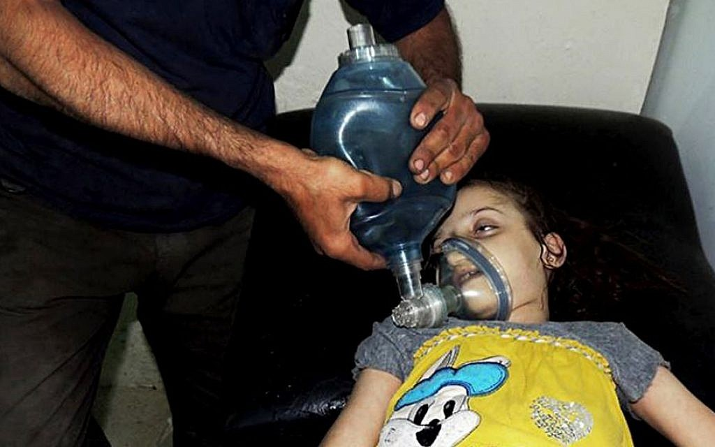 A Syrian girl receives treatment at a makeshift hospital in Arbeen town, Damascus, Syria, on August 21, 2013 (photo credit: AP/Local Committee of Arbeen)