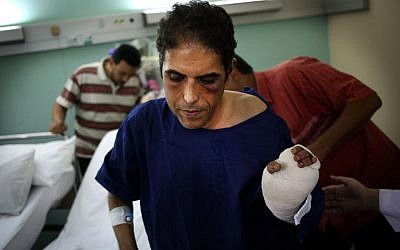 Khaled Dawoud, spokesman for the liberal al-Dustour party, recuperates at a hospital in Cairo, Egypt on Saturday, Oct. 5, 2013, a day after he was stabbed when he drove past a march organized by ousted president Mohamed Morsi supporters on a street near Tahrir Square.(photo credit: AP/Khalil Hamra)