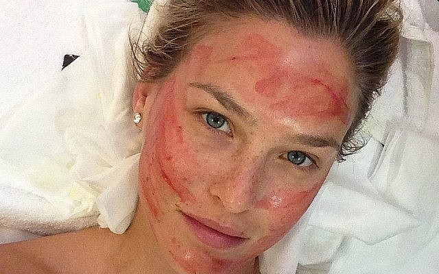 Bar Refaeli undergoing vampire facelift procedure (Instagram)