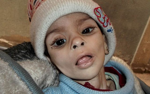 This undated activist file photo provided by the group Palestinians of Syria reportedly shows Israa al-Masri, a baby who later died of hunger-related illness on Jan. 11, 2014 in the Palestinian neighborhood of Yarmouk in Damascus, Syria. (AP Photo/Palestinians of Syria)