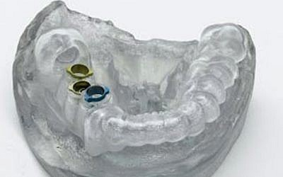 Implant surgical guide produced on a Stratasys Objet Eden260V 3D Printer using Stratasys' Clear Bio-compatible 3D printing material (photo credit: Courtesy)